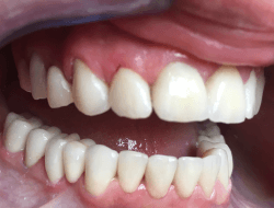 In the front region are veneers and there are zircon-ceramic bridges in the rear region.